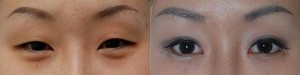 Asian Double-Eyelid Surgery