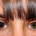 Iris Implant
