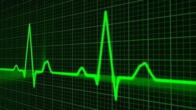 Unusual heart rhythms
