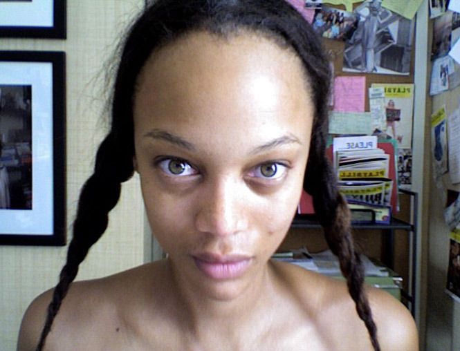 people with big foreheads - 665×508